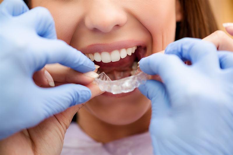 nakładki prostujące na zęby